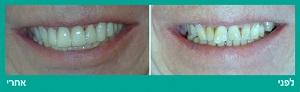ציפוי חרסינה לשיניים קדמיות