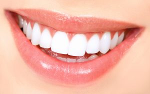 איך להשיג חיוך מושלם?