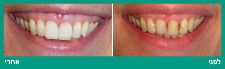 ציפויי חרסינה בשיניים קדמיות לסת עליונה