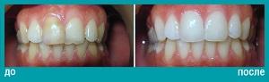 Отбеливание зубов верхней и нижней челюстей и керамические виниры (ламинации) на передних зубах верхней челюсти