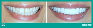 Протезирование на зубах верхней челюсти с использованием керамических коронок и виниров (ламинаций)
