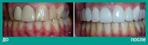 Протезирование зубов верхей челюсти керамическими коронками и отбеливание зубов на нижней челюсти