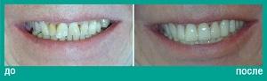 Керамические виниры на передних зубах