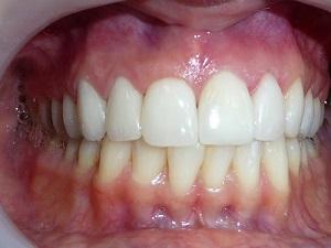 מבנה השיניים, סוגי שיניים