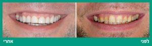 עששת השיניים