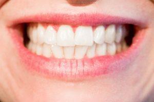 מבנה השיניים